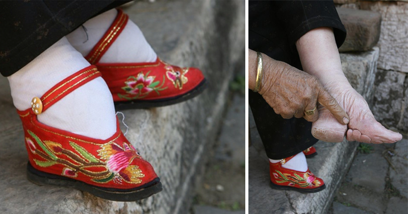 Last Chinese Foot-Binding Follower Reveals The Damage