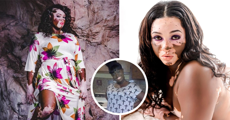 Black Grandmother With Vitiligo Becomes A Model