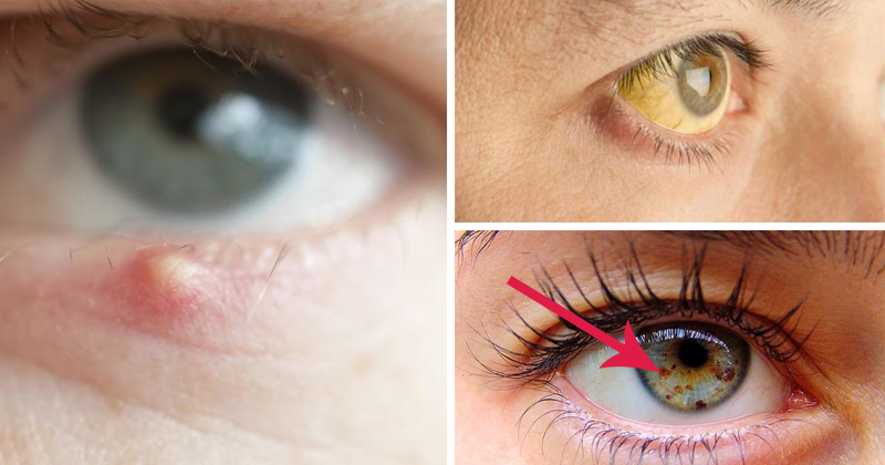 8 Things That Eyes Can Say About Your Health