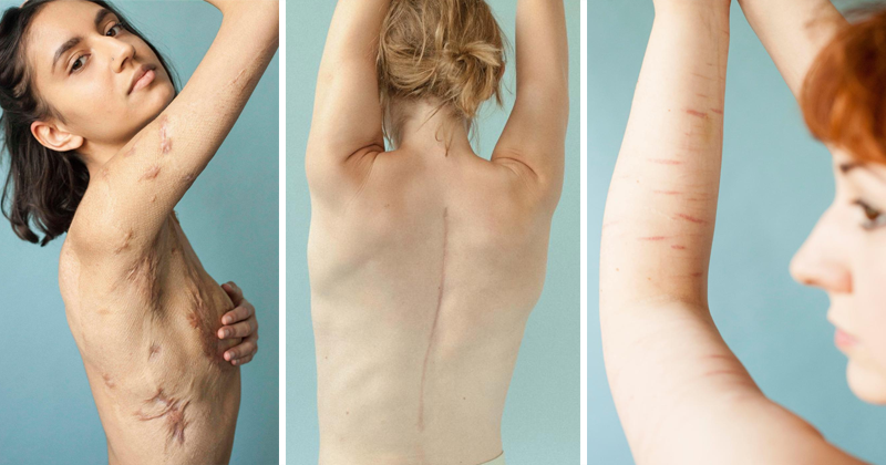 Behind The Scars Invites People To Celebrate Their Imperfections