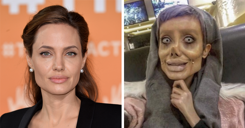 Iranian Instagrammer Takes 50 Surgeries To Look Like Angelina Jolie, Fails
