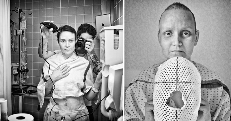 This Photo Series About Woman's Fight With Cancer Will Leave You In Tears