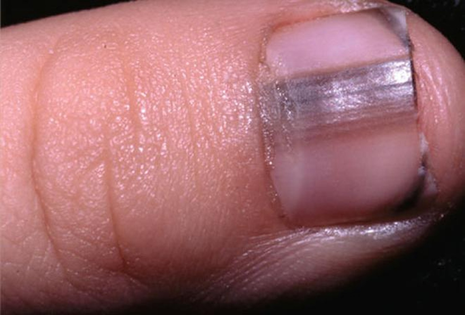 Black line on the nail: Causes, treatments, and pictures Black lines in fingernails pictures
