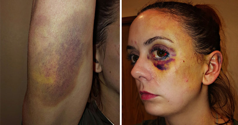 SHOCKING: Woman Posts Abuse Selfies To Encourage Others To Seek Help