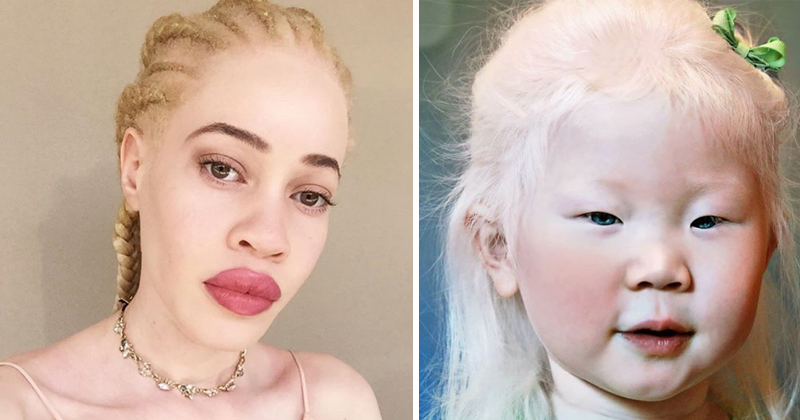 You Will Be Charmed By Beauty Of Albinos Around The World