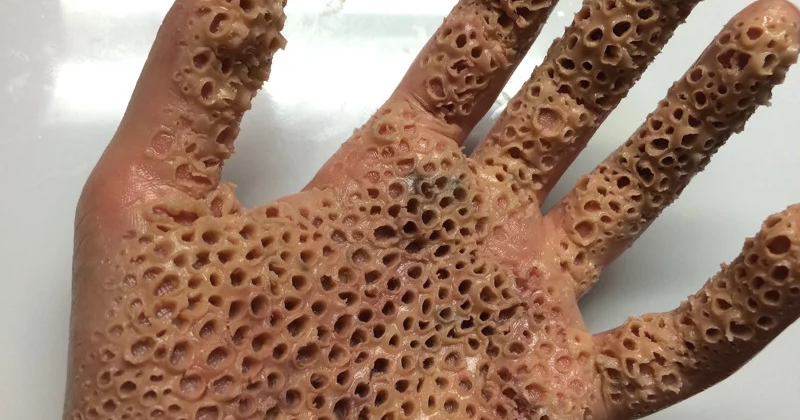 12 Good Reasons For You To Have Trypophobia