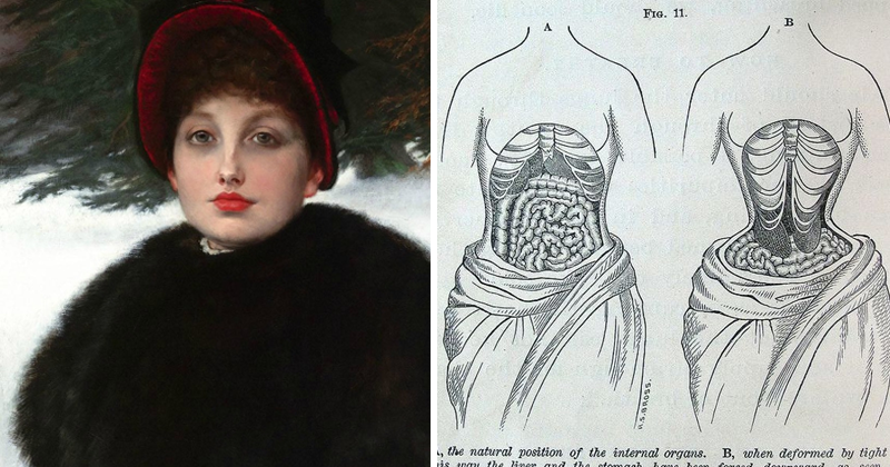 Victorian Beauty Trends That Could Have Killed You Back Then